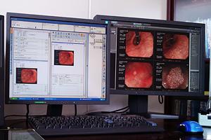 内視鏡検査資料画像2
